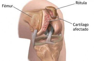 Resultado de imagen para condropatía rotuliana